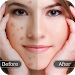 Download Face Blemish Remover - Smooth Skin & Beautify Face 1.3 APK